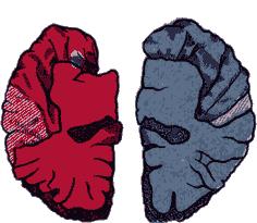 Рис. 16. Морфологическая асимметрия двух полушарий мозга (по Гешвинду). а — мозг с преобладанием речевых зон левого полушария;