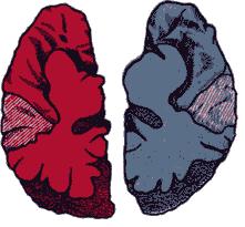 Рис. 16. Морфологическая асимметрия двух полушарий мозга (по Гешвинду). б — симметричное развитие обоих полушарий