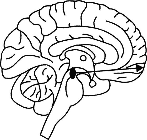 Рис. 10.1. Схематическое изображение вентральной области покрышки среднего мозга и ретикуло-фронтального проводящего пути, поврежденного в случае Кевина