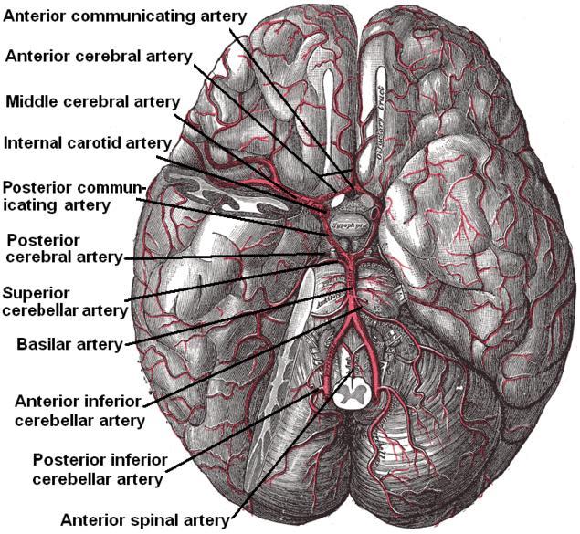 Артерии основания мозга (вид снизу). Для лучшего отображения артерий - на правой стороне удалена часть полушария головного мозга и часть мозжечкового полушария