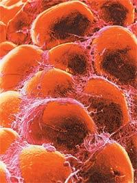 Жировые клетки под растровым электронным микроскопом