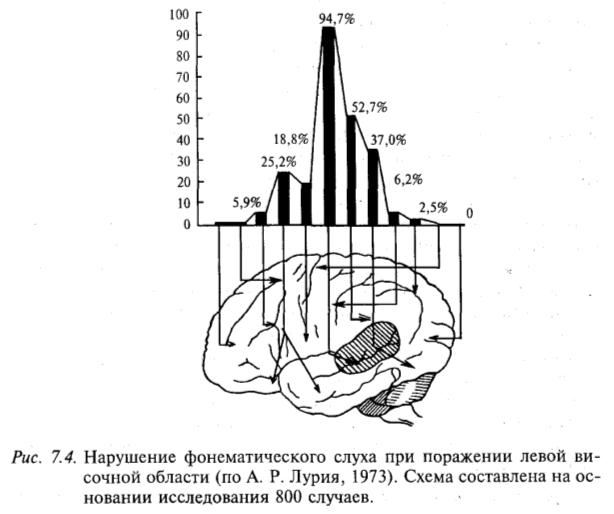 Нарушение фонематического слуха при поражении левой височной области (по А.Р. Лурия, 1973). Схема составлена на основании исследования 800 случаев