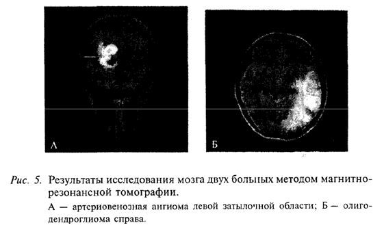 Результаты исследования мозга двух больных методом магнитно-резонансной томографии