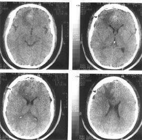 Компьютерная томография головного мозга того же больного через 4 дня после операции — удаления внутримозговой гематомы правой лобной доли