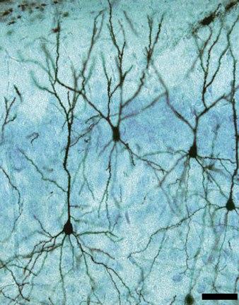 Пирамидальный нейрон Беца