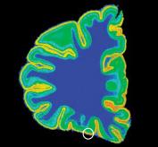 Повышенное связывание серотонина нейронами