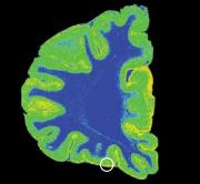 Серотониновые транспортеры среза мозга самоубийцы