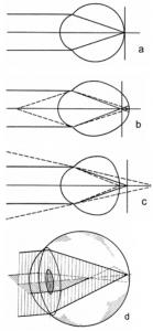 Ход лучей при различных видах клинической рефракции глаза