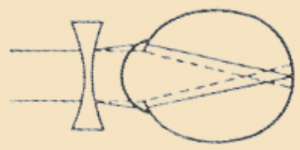Схема коррекции близорукости