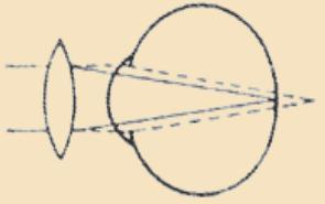 Схема коррекции дальнозоркости