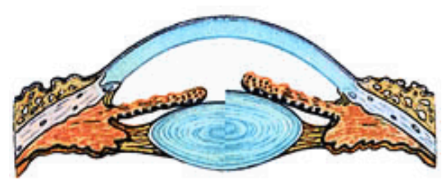 Схематическое представление механизма аккомодации