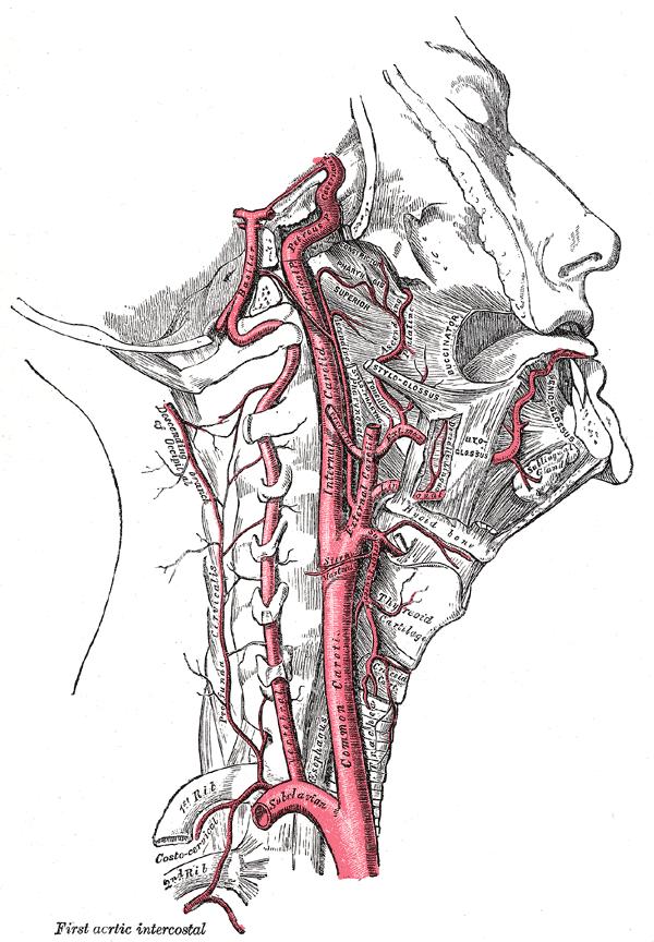 Внутренняя сонная и позвоночные артерии (правая сторона)