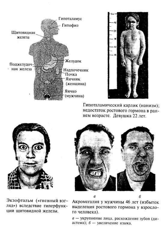 Эндокринная система организма человека. Примеры некоторых эндокринных нарушений