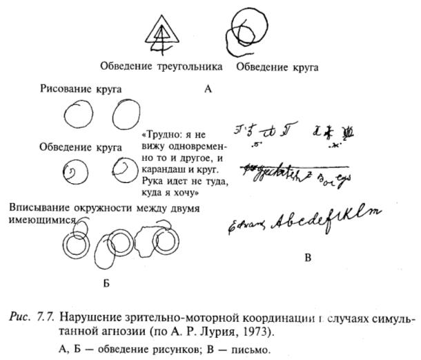 Нарушение зрительно-моторной координации в случаях симультанной агнозии (по А.Р. Лурия, 1973)