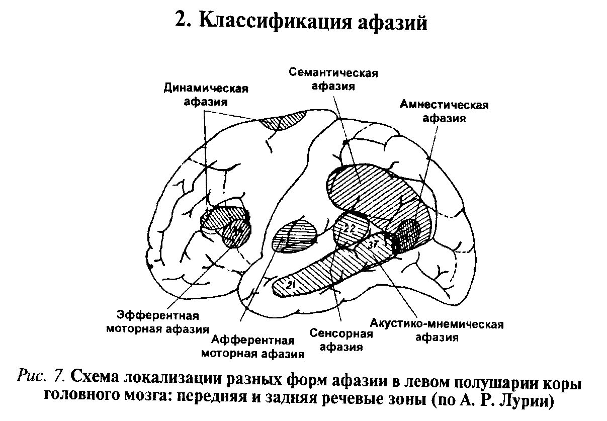 Классификация афазий