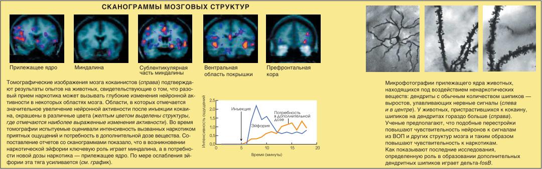 Сканограммы мозговых структур