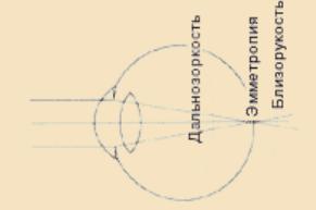 Три варианта оптической системы глаза